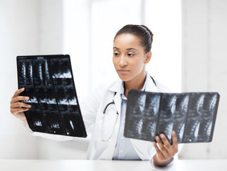 african doctor looking at x-rays
