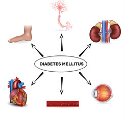 Diabetes mellitus affected organs