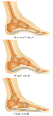 Set of flat foot, high arch.Rheumatoid Arthritis In Arch Of Foot