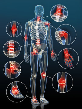 Gelenkentzündungen bei Arthrose