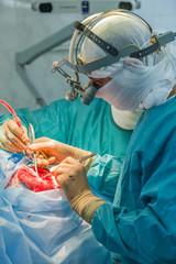 Surgery on the brain