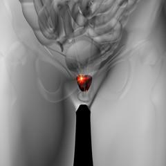 Prostate - Male anatomy of human organs