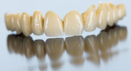 Porcelain dental bridge on mirror surface