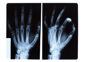 X-ray of male hand.