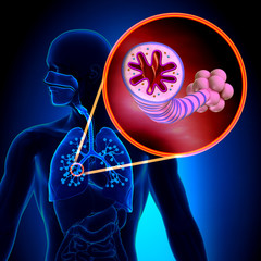 Asthma - Chronic Inflammatory Disease