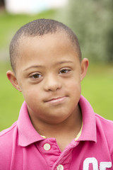 9 year old boy with Downs Syndrome