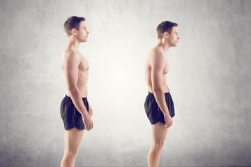 Corrección de Postura