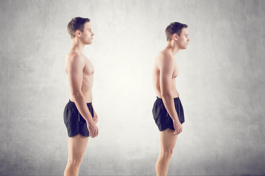 Man with impaired posture position defect scoliosis and ideal