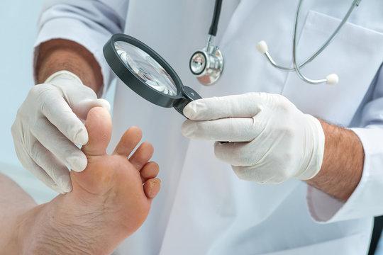 Tinia pedis or Athletes foot