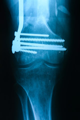 Left tibiofibula fracture fixation after the operation, the fron