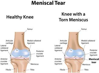 Meniscal Tear