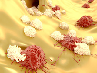Cancer cells attacked by lymphocytes