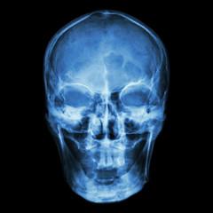 X-ray skull (Asian)
