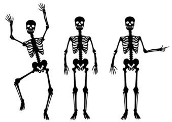 SAMMLUNG: Menschliches Skelett, hindeuten, tanzend, schwarz