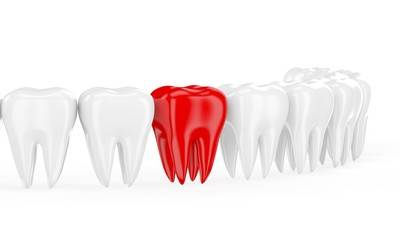 Aching tooth in row of healthy teeth. 3d