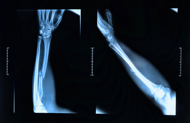 Arm fracture seen on x-ray