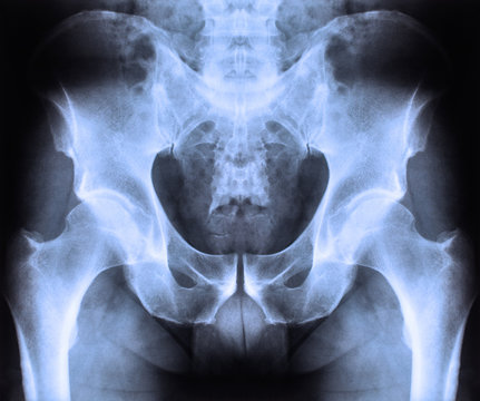 X ray of spine and pelvis