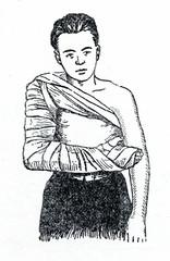 Emergency splinting of humerus fracture