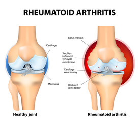 Normal Joint and Rheumatoid Arthritis