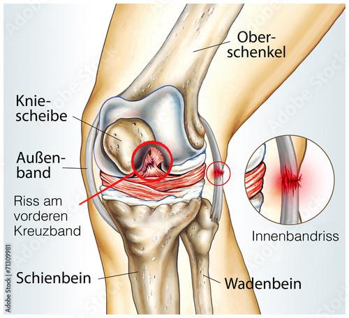 Bänderzerrung Knie