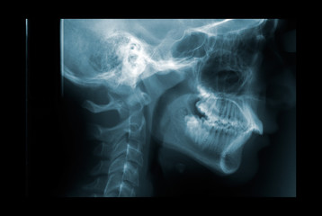 X-ray of the cervical spine
