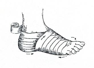 Bandaging the foot
