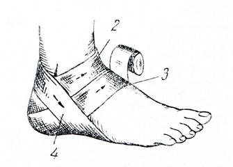 Bandaging the heel