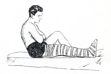 Emergency splinting of leg fracture