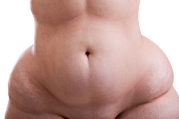 Torso of a woman with obesity, stomach
