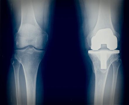Bicompartmental knee prosthesis xray