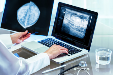 Doctor reviewing mammography results on pc.