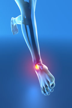 Uomo che corre con dolore alla caviglia rottura distorsione