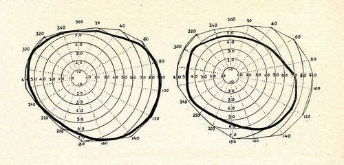 Perimetry charts, showing the field of vision