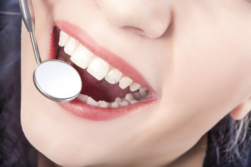 Dental Treatment with Mouth Mirror of Young Caucasian Female Dur