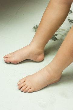 Gross edema of leg and foot