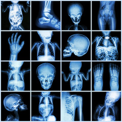 Collection X-ray part of child body