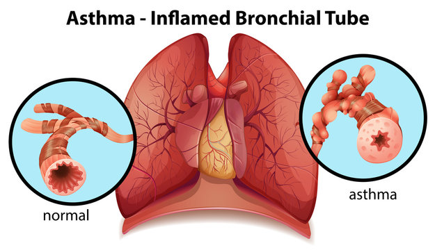 An asthma-inflamed bronchial tube