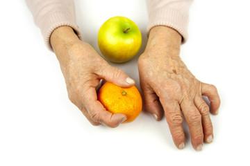 Rheumatoid arthritis hands and fruits