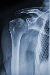 Röntgenbild Schulter Medizin