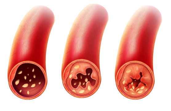 Anatomy of Atherosclerosis in artery