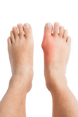 Pair of feet with deformed right toe with gout inflammation.