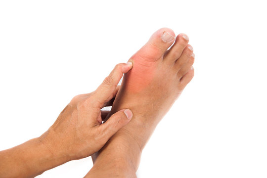 Painful gout inflammation on big toe joint