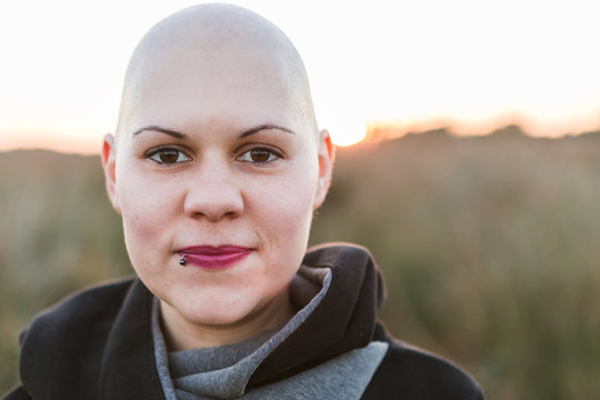 Real Female hairless fight against cancer outdoor