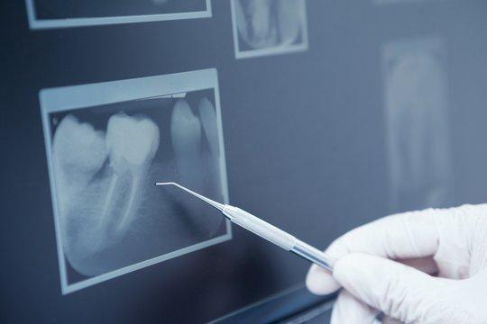 Gloved hand holding dental tool to teeth x-ray