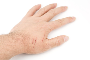 ひっかき傷がついた手