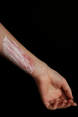 Treatment of burns on female hand on black background