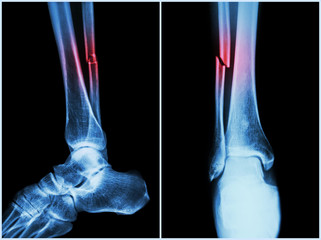 Fracture shaft of fibula bone ( leg bone ) .  X-ray of leg