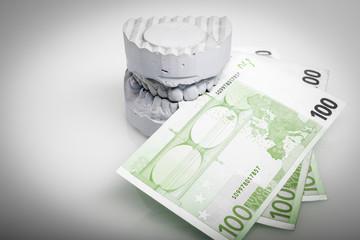 Zahnprothese Gebiss