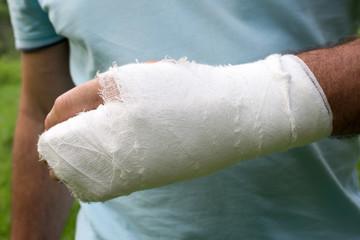 Men with his broken right arm