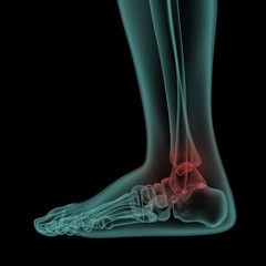 side x-ray view of human painful foot and ankle